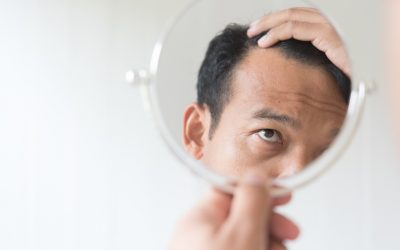 Losing Your Mind: The Psychological Effects of Hair Loss