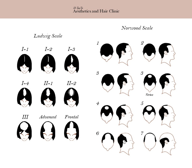 Ludwig-scale-and-Norwood-scale-hair-loss-image