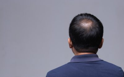 Getting to the Root of Hair Loss in Asian Men