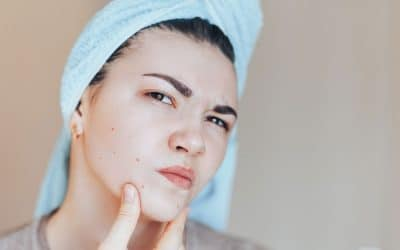 All About Acne: What Causes Acne and How Do You Treat It?