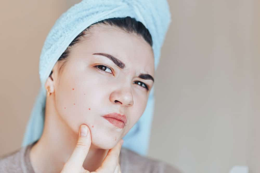 Acne and How Do You Treat It