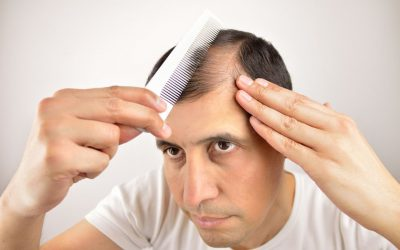 Five Hair Loss Treatments in Singapore