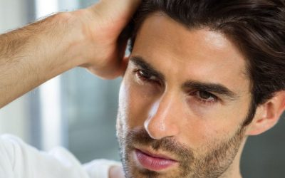 Receding Hairlines and Baldness : How to Stop a Receding Hairline