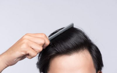 Regenera Activa Vs. Hair Transplant: Which is Right For Me?