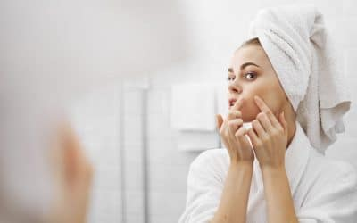 How Not to Let Acne Ruin Your Teenage Years and Beyond