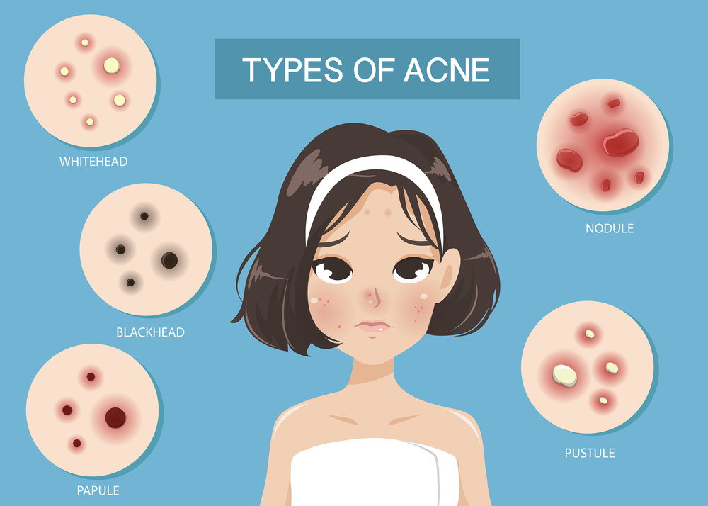 Types of acne - illustration