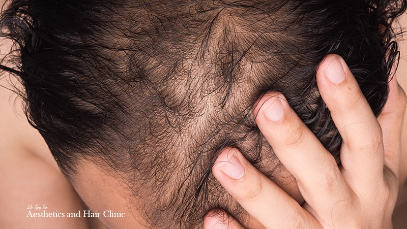 6 Things To Consider Before You Engage A Hair Transplant Surgeon - Dr Tyng Tan