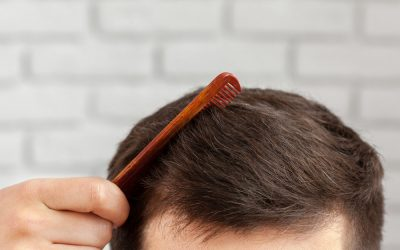 Hair Weaves vs. Hair Transplant: Which is a Practical Solution?