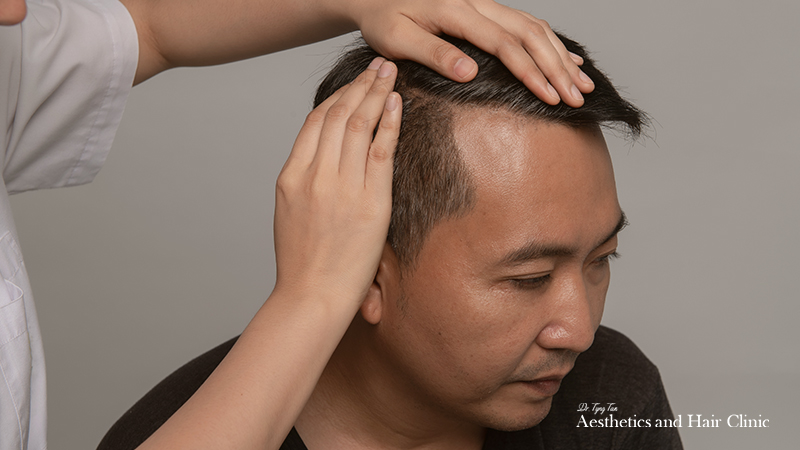 10 Questions to Ask Yourself when Finding a Hair Loss Clinic in Singapore
