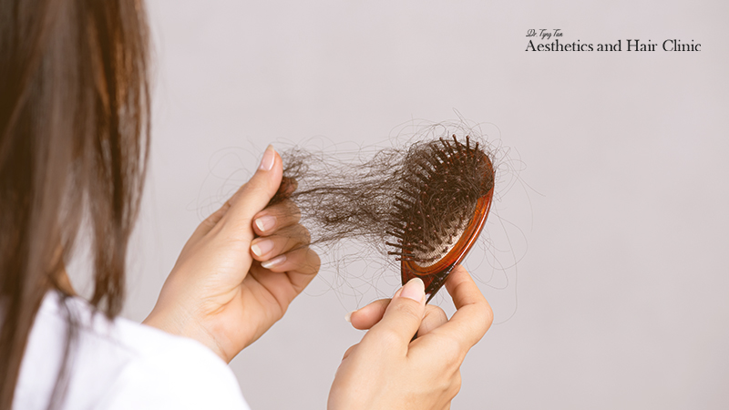 Stres untuk rambut rontok-Dr Tyng Tan