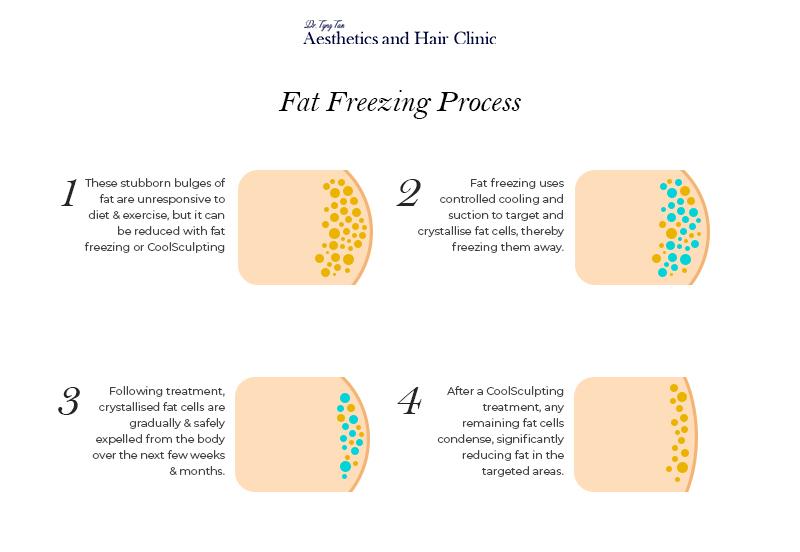 Fat freezing process - Dr Tyng Tan