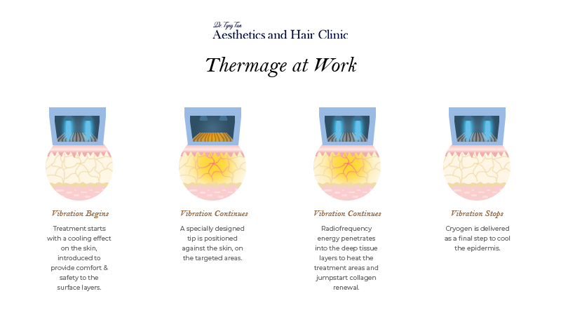 Thermage Process