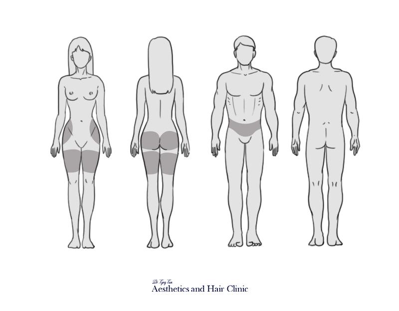 subcutaneous fat