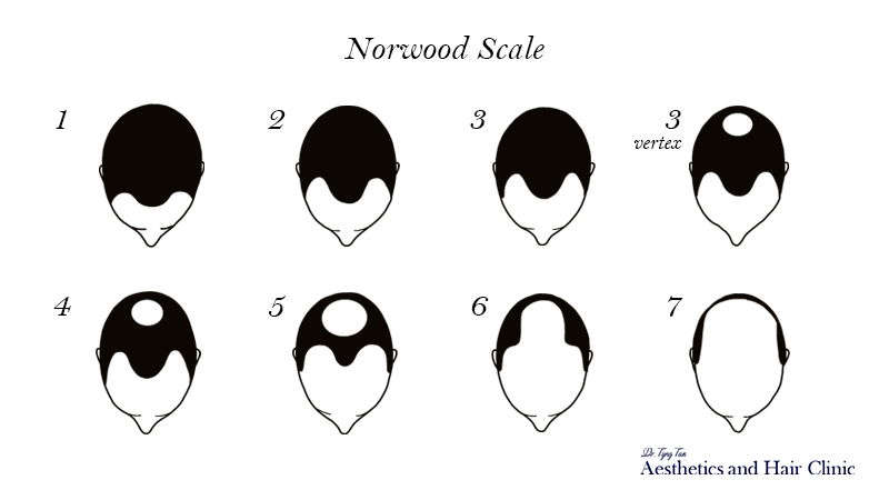 Norwood Scale