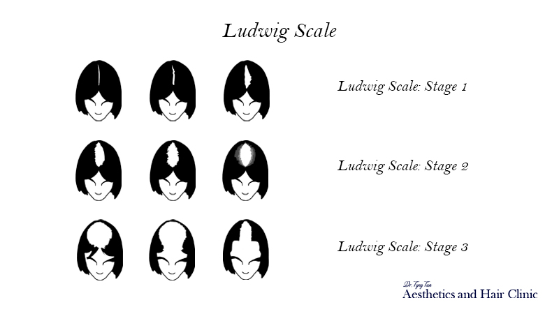 Ludwig Scale