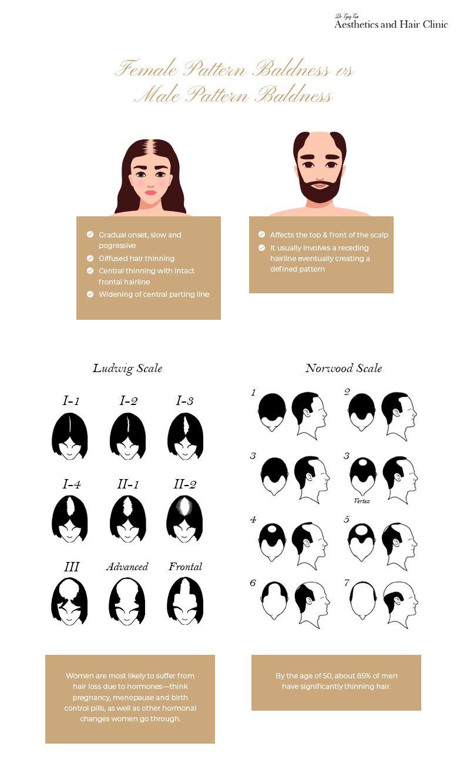 Female Hair Loss Vs Male Hair Loss