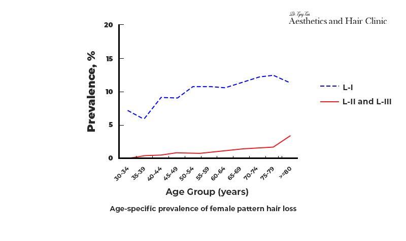 Female Pattern Hair Loss Age