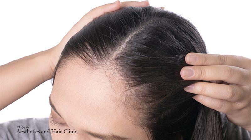 Female Pattern Hair Loss Blog Image