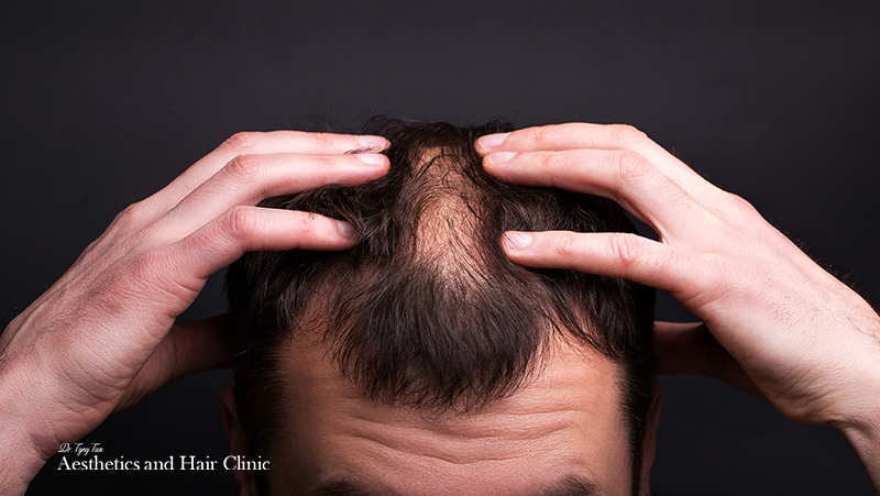 4 Reasons Why Hair Loss is Linked to Hypertension