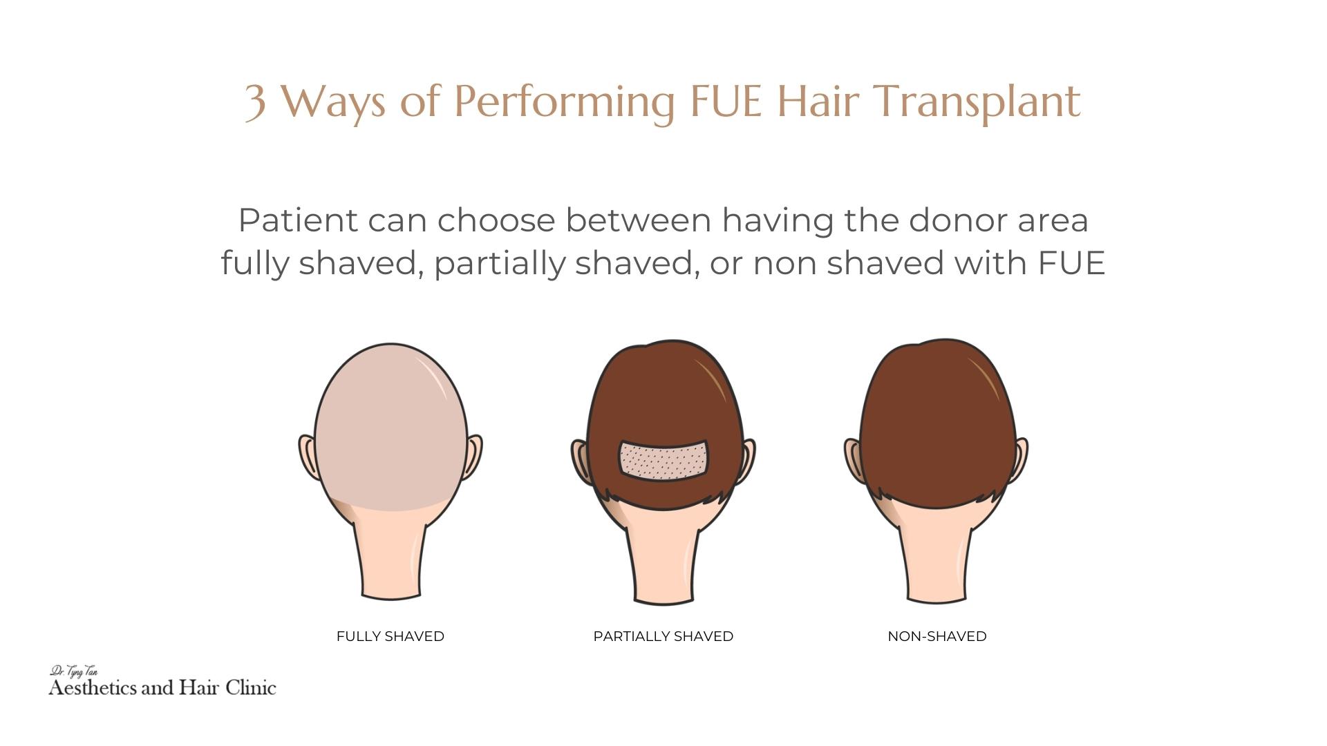 3 Ways of Performing FUE Hair Transplant