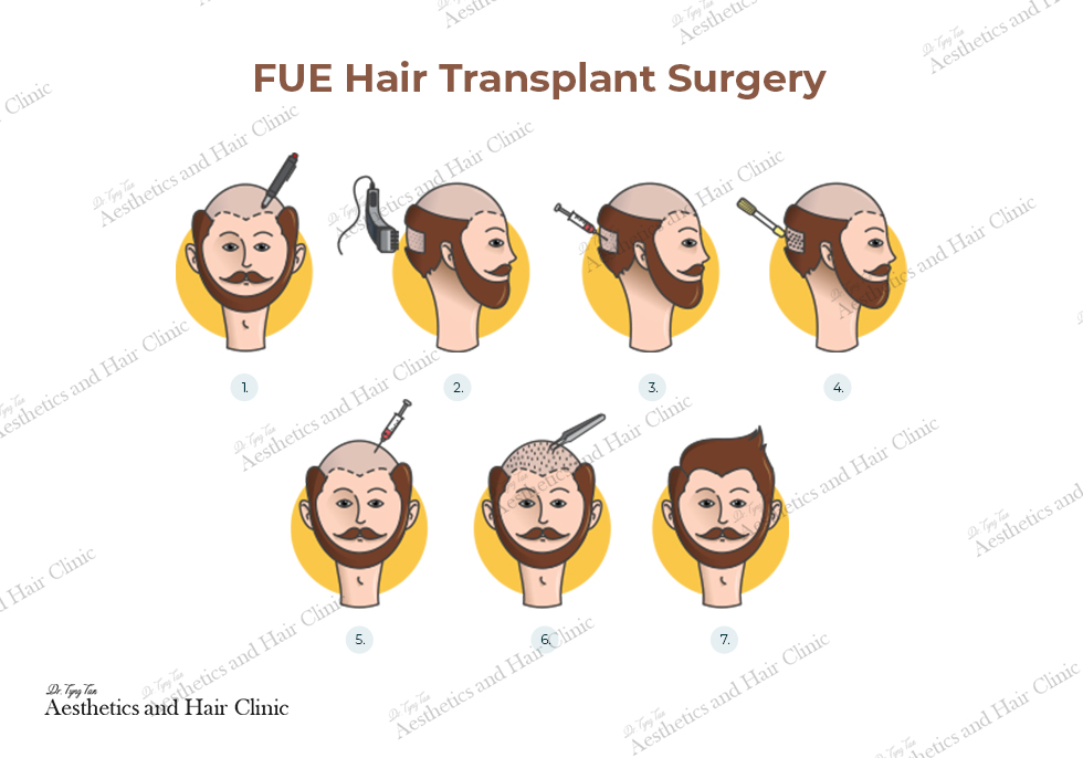 fue hair transplant surgery process with watermark